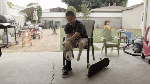 Ein junger Mann mit verstümmelten Gliedmassen legt eine Beinprothese an
